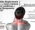 What is atlas displacement complex and most common secondary conditions at Precision Chiropractic, Austin, TX