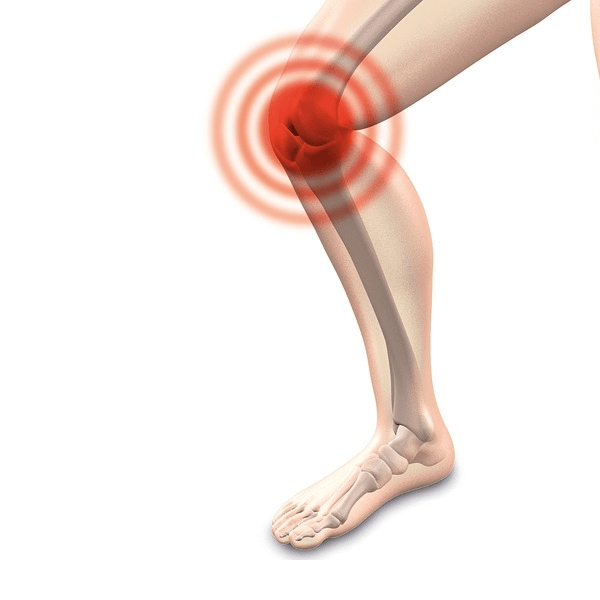 Knee Pain Specialist Chiropractic Care In Austin, TX - Precision Chiropractic