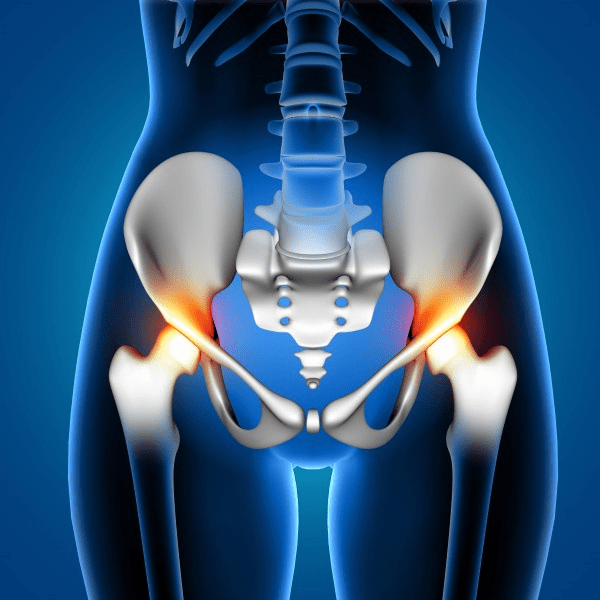 Hip Pain Specialist Chiropractic Care In Austin, TX - Precision Chiropractic